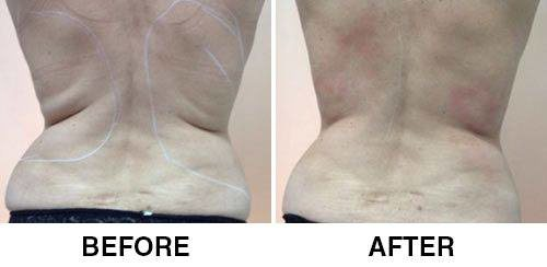 tightsculpting-before-after-1